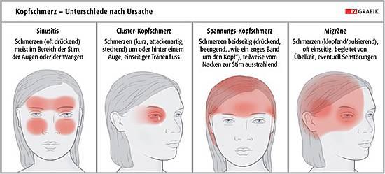 Visuelle Symptome: Augen auf bei Migräne | PTA-Forum