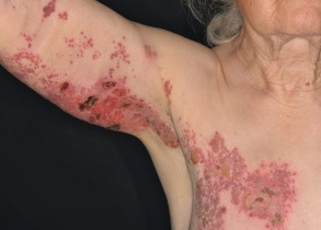 Hautausschlag Virus